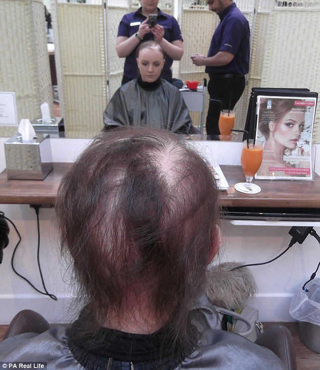 As her bald patches spread, a doctor diagnosed her with alopecia. Lucy is pictured here before getting fitted with a wig