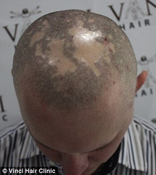 Kamil Szczepanik suffered from alopecia and had to wear a hat for a long time to cover his balding areas