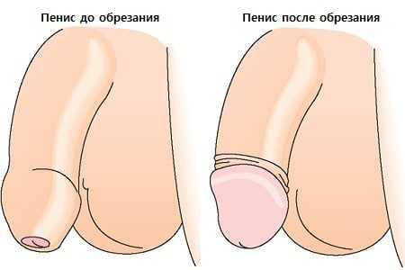 Головка пениса до конца не раскрывается
